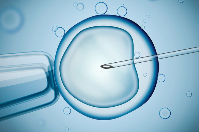 Computer technology advancing IVF treatment